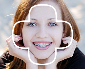 Ortodoncia_autoligable