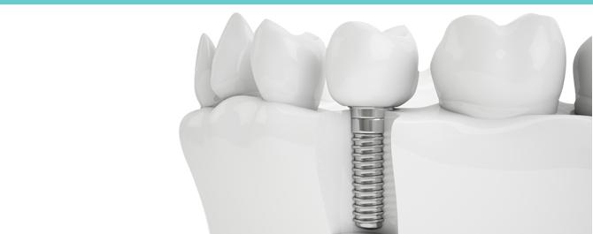 slider_dental2